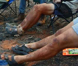 dirty-legs.jpg